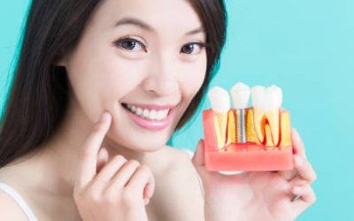 Why Replacing Missing Teeth Is Good For Oral Health